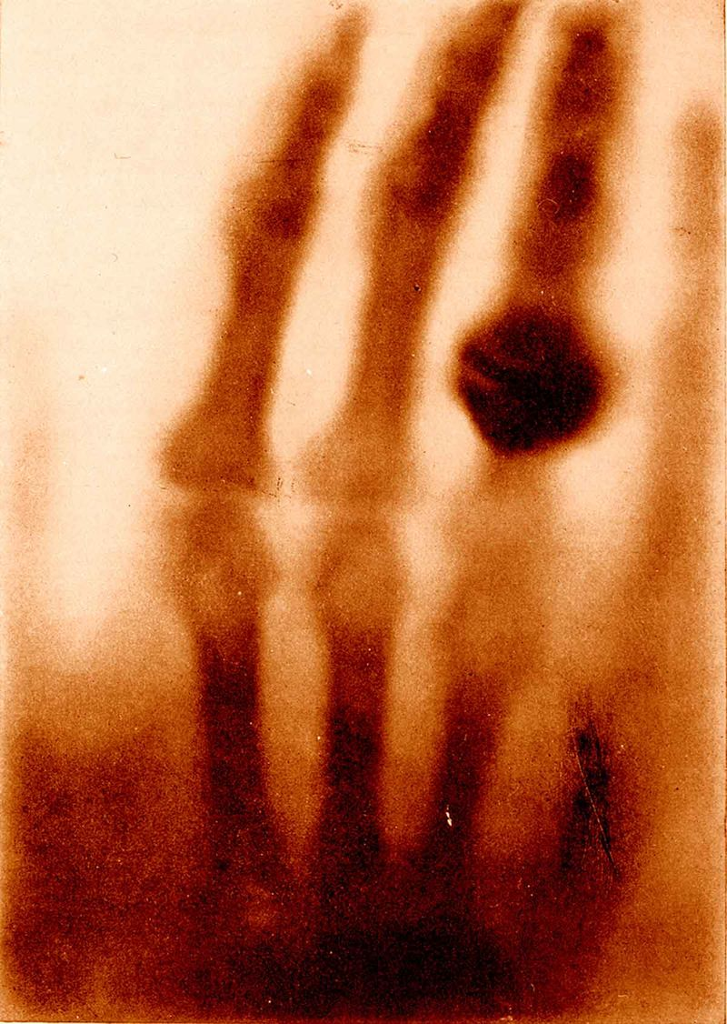 The hand of Mrs. Wilhelm Roentgen- the first X-ray image 1896